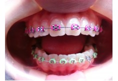 Foto Centro en Ortopedia y Ortodoncia Dentoalveolar S.C. Distrito Federal